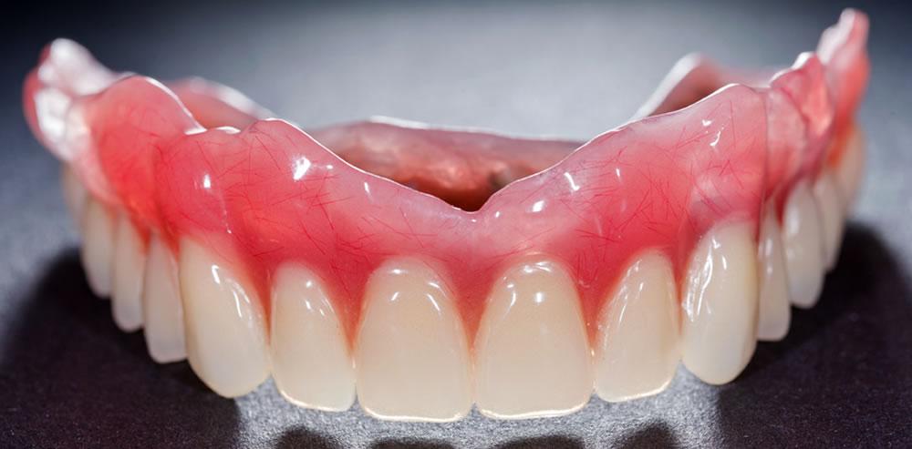 恵比寿で入れ歯製作