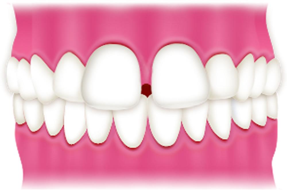 すきっ歯(空隙歯列)