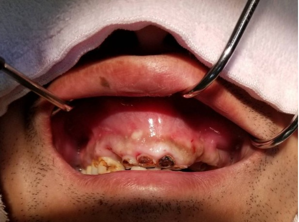 手術 摘出 歯根 嚢胞